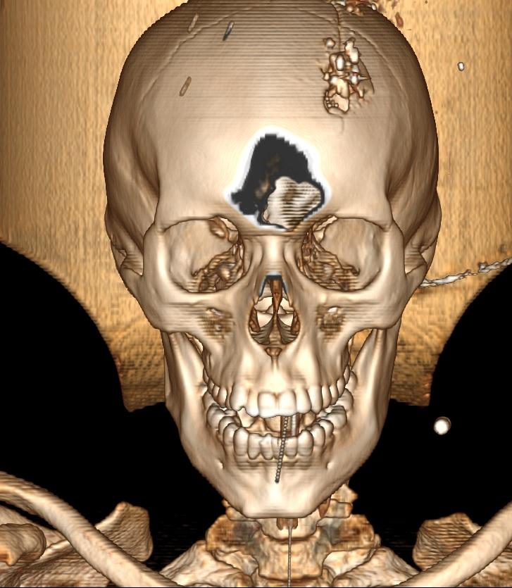 Eliecer Aguirre Centeno fue asesinado en Sébaco el 14 de mayo, después que Monseñor Rolando Álvarez sacara la procesión del Santisimo. El disparo le fracturó totalmente el cráneo, como puede apreciarse en la tomografía (Fuente: confidencial.com.ni)