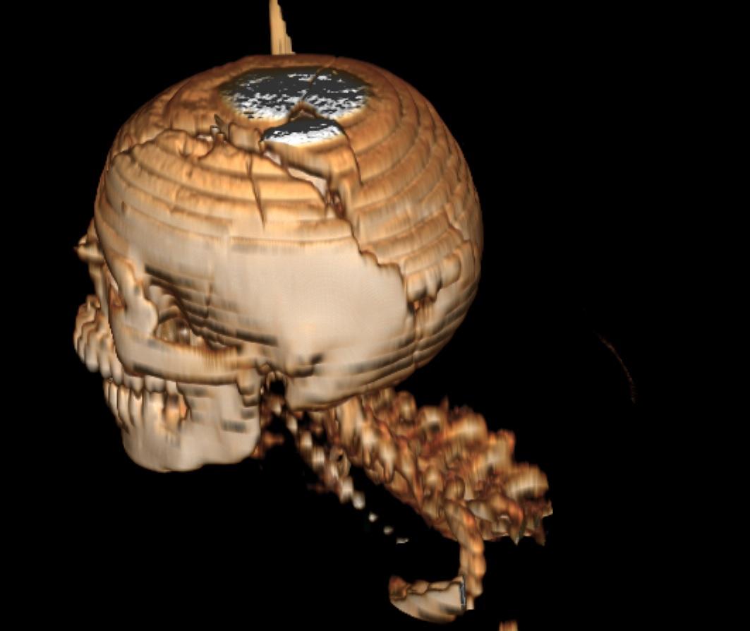 El disparo que sufrió el joven Jefferson Flores Medrano fue de arriba a hacia abajo. Entró en la parte frontal y salió parietal occipital. El trayecto del proyectil fragmentó el cráneo (Fuente: Confidencial).