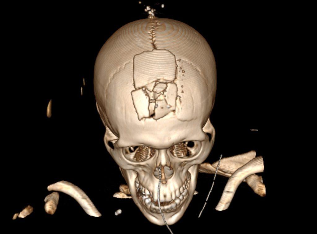 La tomografía de José Alfredo Urroz muestra uno de los disparos más letales entre las víctimas. La bala estalló toda la parte frontal del cráneo al salir (Fuente: confidencial.com.ni)