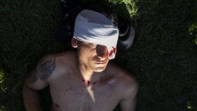 Heridos por balas y perdigones: horas negras en los servicios de urgencia